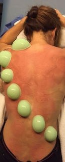 modern cupping